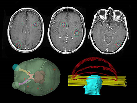 frameless stereotactic radiosurgery