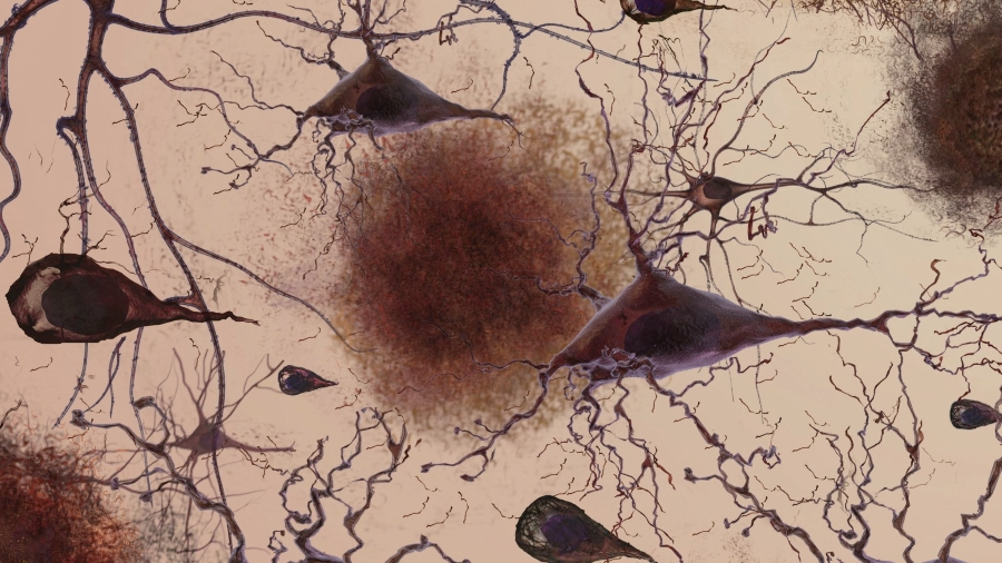 A rendering of amyloid protein plaques accumulating between neurons in the brain