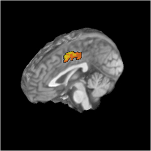 image of adolescent brain