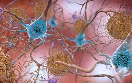 artist rendering amyloid plaques