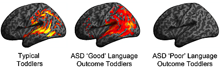 ASD language graphic