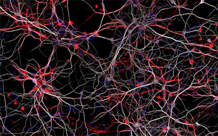 autism neurons