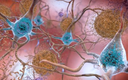 NIH: beta-amyloid brain plaques