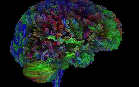 brains tractography