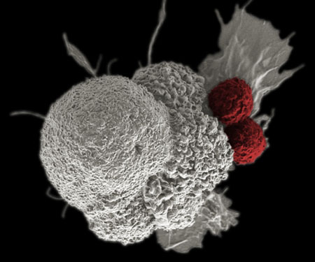 Cancer cell with T cells