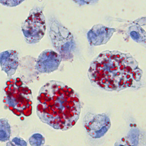 foamy macrophages