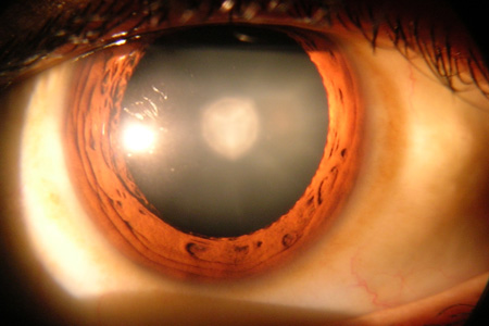 eye cataract