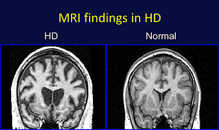 MRI of HD brain