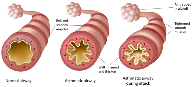 Illustration of airways before and during an asthma attack.