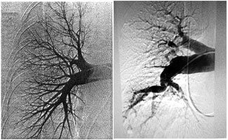 Pulmonary Angiograms