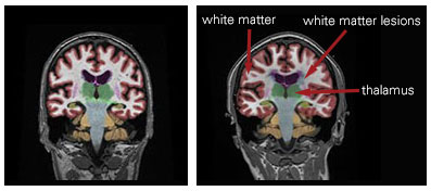 ms-brain images 2.jpg