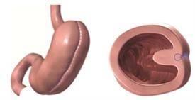 Gastric plication and endoscopic plication procedure folds the stomach in on itself to reduce its size.